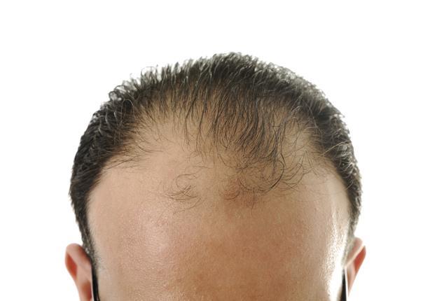 الشعر الخفيف للرجال