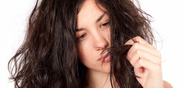 علاج تساقط الشعر الدهني الشديد