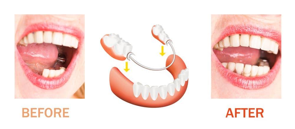 أفضل انواع زراعة الاسنان