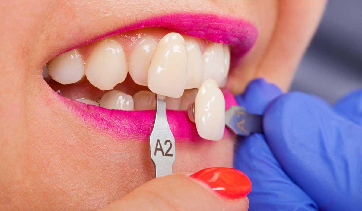احدث طرق زراعة الاسنان