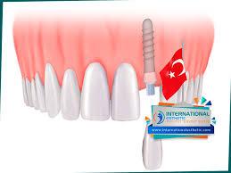 كم سعر زراعة الاسنان في تركيا