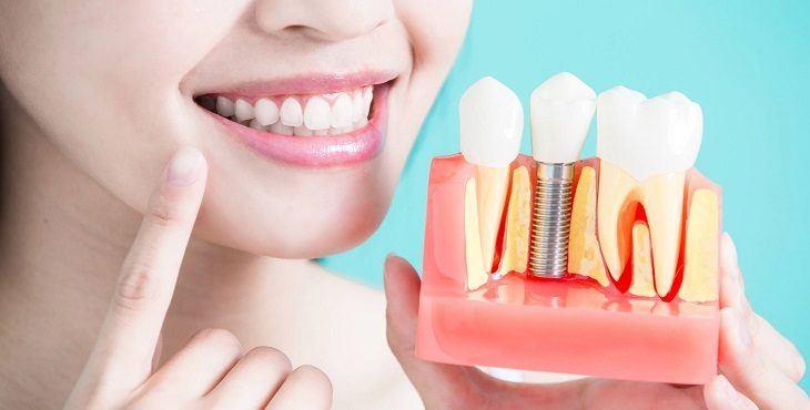 اسعار حشو الاسنان في تركيا