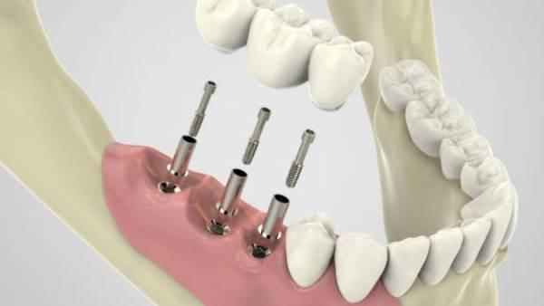 اطباء اسنان في تركيا