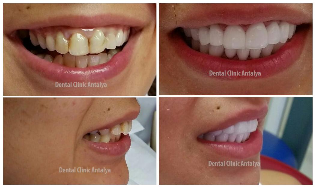 اطباء الاسنان في تركيا