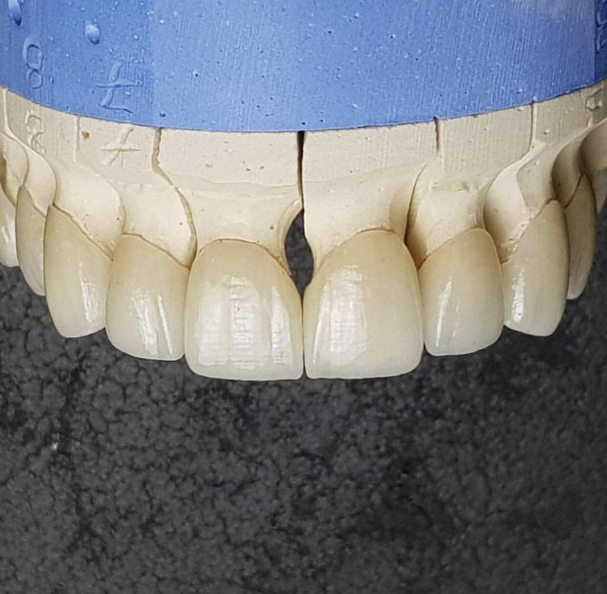 افضل دكتور زراعة اسنان في تركيا