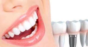 افضل مراكز زراعة الاسنان في تركيا
