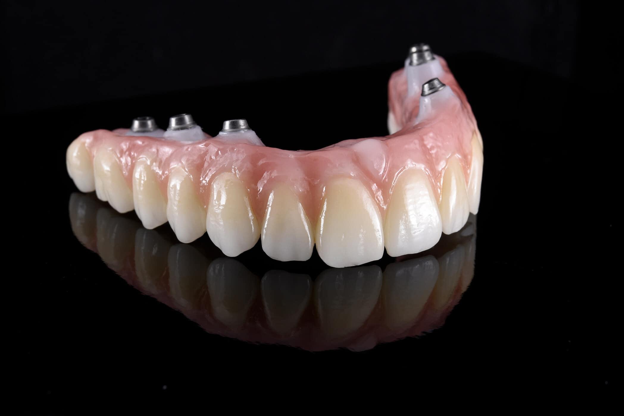 انواع تركيبات الاسنان الزيركون