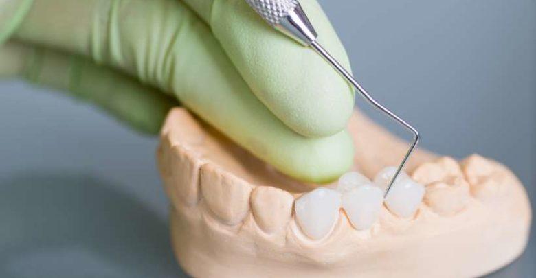انواع زراعة الاسنان