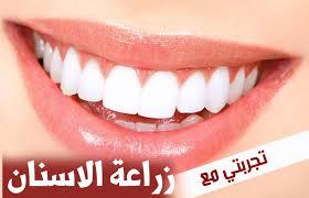 تجارب زراعة الاسنان في تركيا