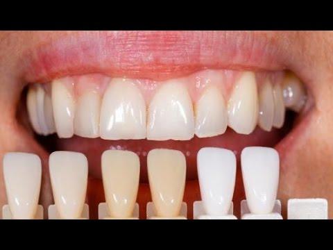 تجربتي مع تلبيس الاسنان