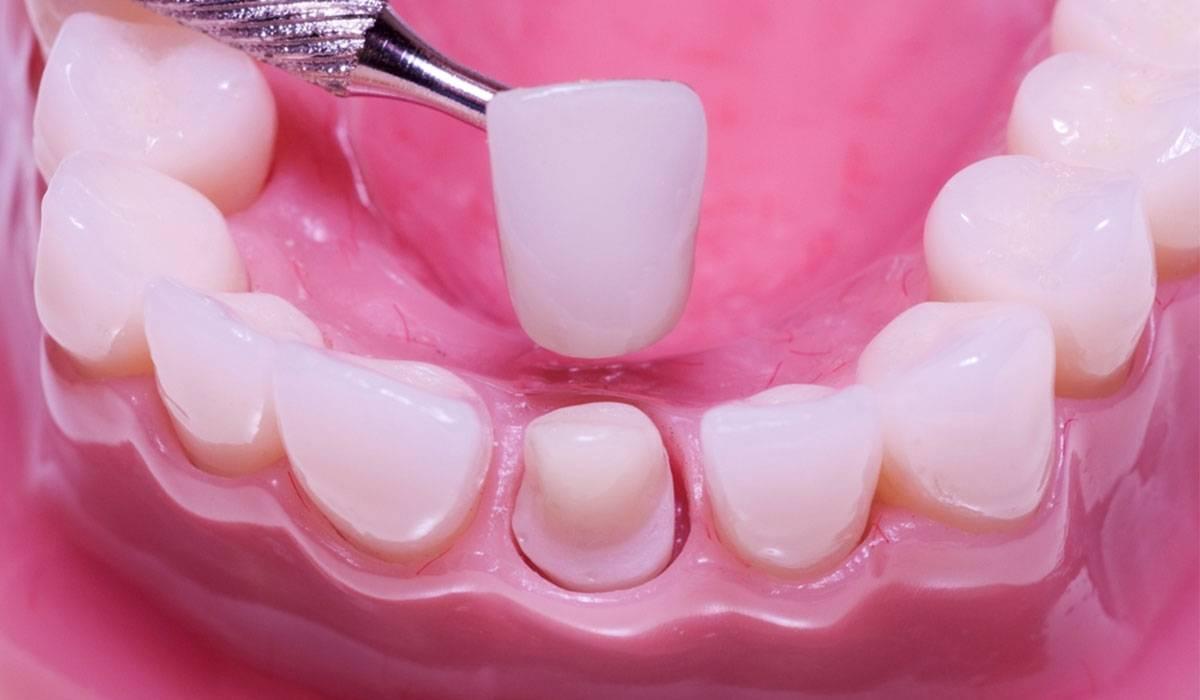 تجميل الاسنان بالزيركون