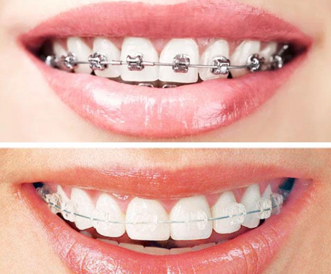 افضل اطباء الاسنان فى تركيا