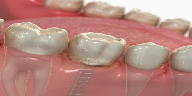 تكلفة زراعة الاسنان الفورية في تركيا