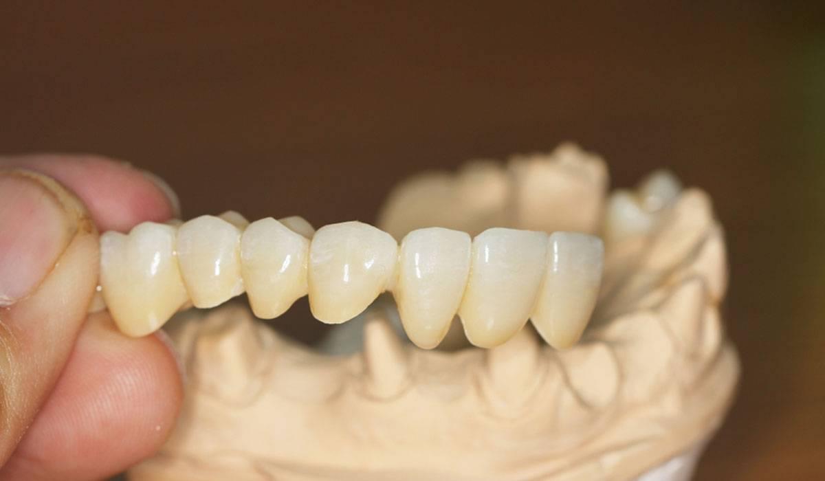 تلبيس الاسنان الزيركون
