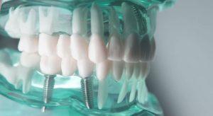 انتفاخ الخد بعد زراعة الاسنان