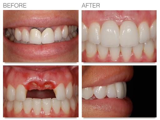 زراعة الاسنان بالصور