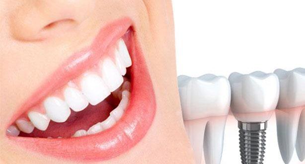 زراعة الاسنان بالليزر