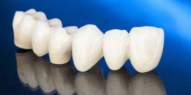 سعر زراعة الاسنان في تركيا