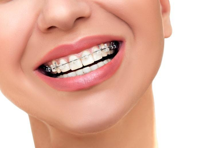 سعر مثبت الاسنان بعد التقويم