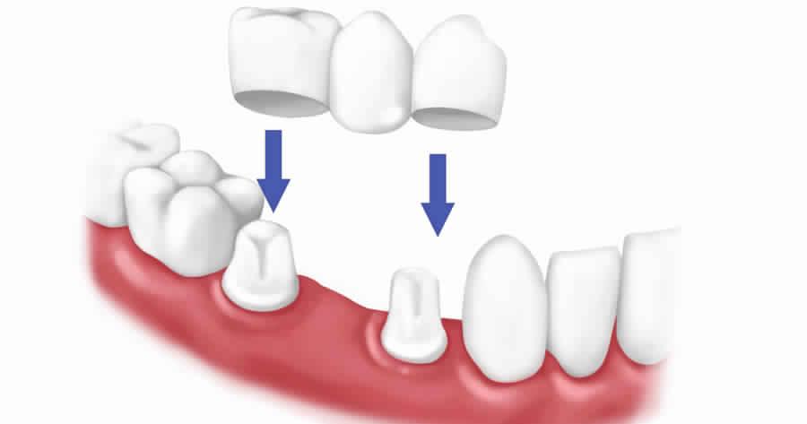 عمليات تجميل الاسنان قبل وبعد