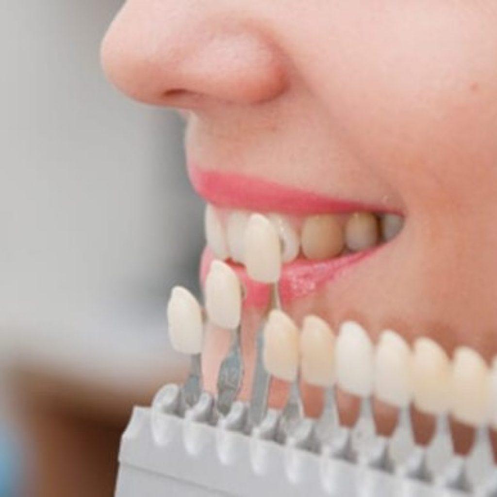 ما هي عدسات الاسنان